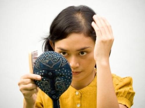 Calvicie Feminina, Causas e Tratamento