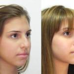 cirurgia-plastica-no-nariz-8